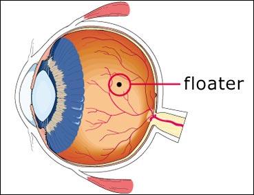 eye floaters danger